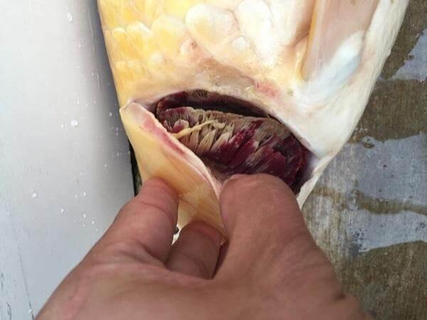 bệnh nấm da mang